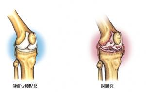 健康な膝関節(イラスト:左) 関節炎(イラスト:右)