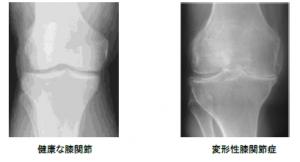 健康な膝関節(写真:左) 変形性膝関節症(写真:右)